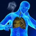 بالصور علاج السرطان المنتشر بالاعشاب