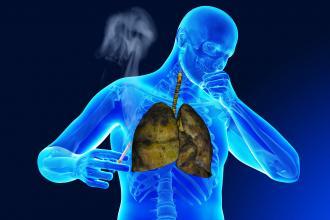صورة علاج السرطان المنتشر بالاعشاب