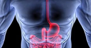 صورة علاج القولون العصبي فعال