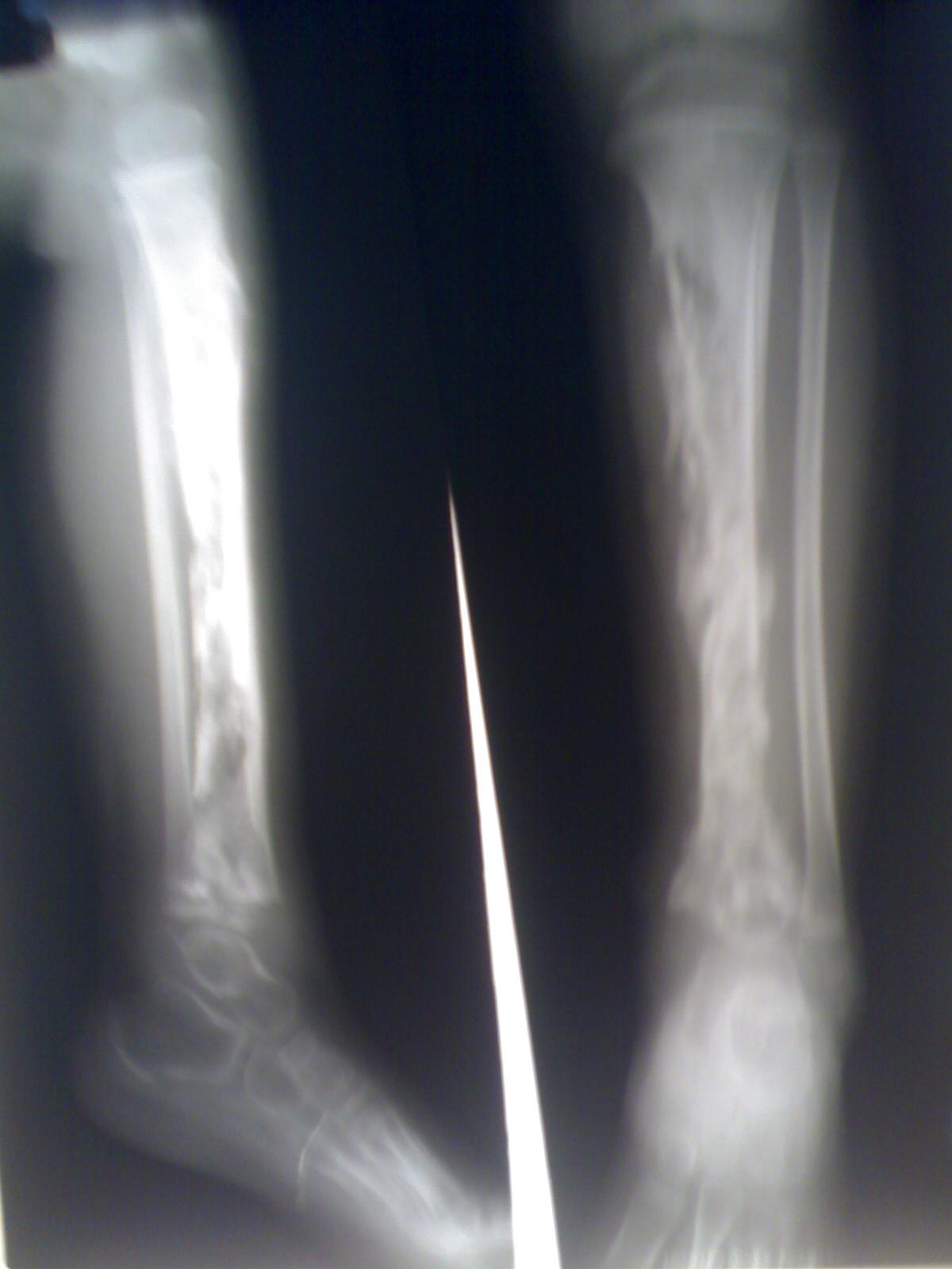 صورة علاج التهاب العظام فعال