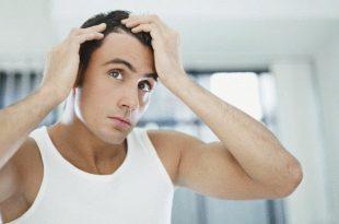 صورة تساقط الشعر عند الشباب