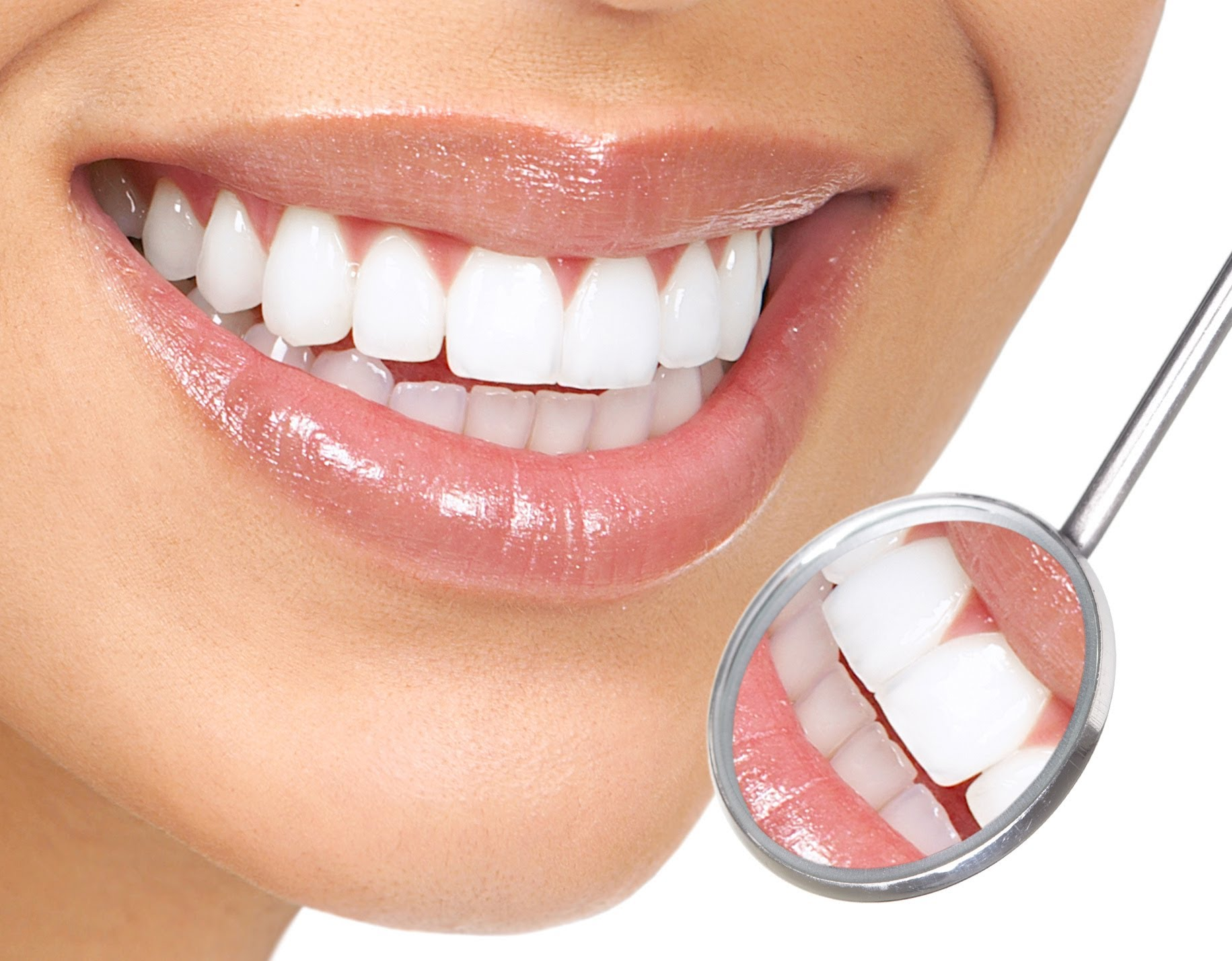 صورة لتبييض الاسنان
