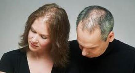 صورة اسباب سقوط الشعر
