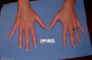 صورة ما هو سبب بروز العروق في اليدين