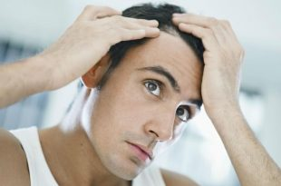 صورة اكلات تمنع سقوط الشعر