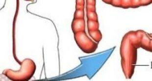صورة مكان القولون العصبي في الجسم