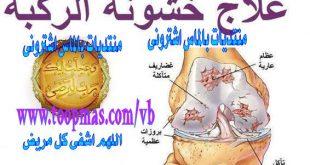 صورة علاج طبيعي لخشونة الركبة