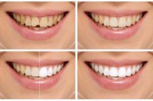 صورة كيف ابيض اسناني في يوم واحد