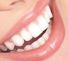 صورة طريقة لتبيض الاسنان