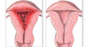 صورة هل يحدث حمل مع وجود التهابات