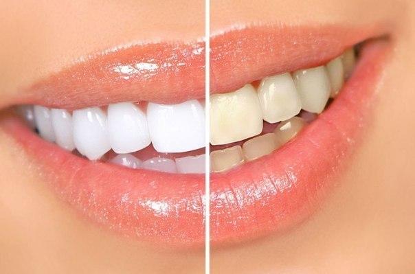 صورة وصفة لتبييض الاسنان