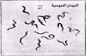 صورة علاج الديدان الدبوسية عند الكبار