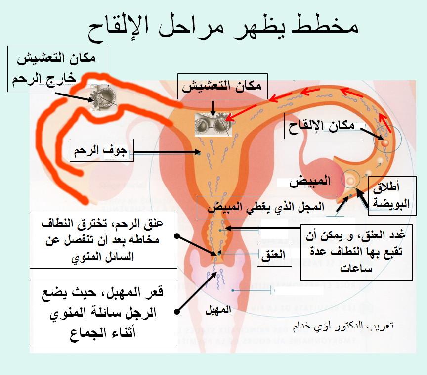 صور علاج ضيق عنق الرحم