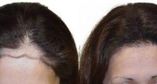 تجارب زراعة الشعر للنساء