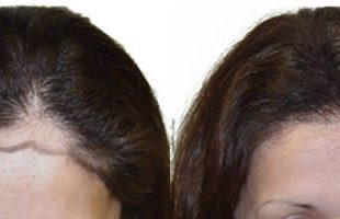 بالصور تجارب زراعة الشعر للنساء 20160818 1590 1 310x200