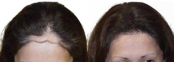 صورة تجارب زراعة الشعر للنساء