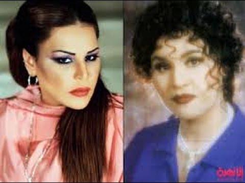 صورة صور احلام قبل عمليات التجميل