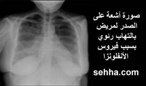 صورة اعراض التهاب الصدري