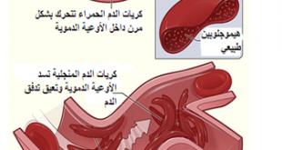 صورة الانيميا المنجلية وعلاجها