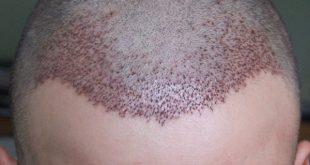 افضل عيادات زراعة الشعر في تركيا