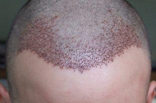 صورة افضل عيادات زراعة الشعر في تركيا