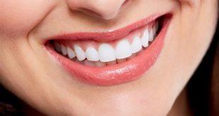 صور وصفات الدكتور عادل عبد العال لتبيض الاسنان
