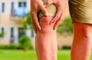 صورة خشونة الركبة وعلاجها بالطب البديل