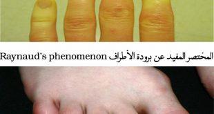 صورة ما سبب برودة القدمين واليدين