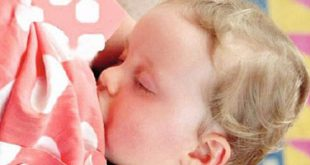 صورة اصفرار الوجه عند الاطفال