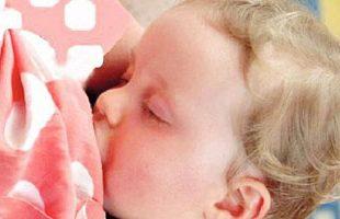 صور اصفرار الوجه عند الاطفال