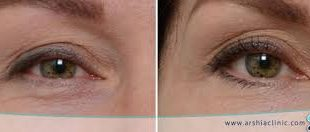 صور علاج تجاعيد تحت العين بالليزر