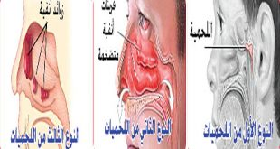 صورة علاج اللحمية عند الاطفال