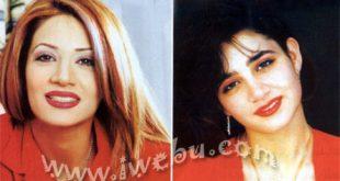 صورة مغنيات قبل وبعد عمليات التجميل