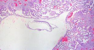 صورة نسبة الهرمون في الحمل خارج الرحم