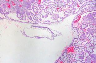 بالصور نسبة الهرمون في الحمل خارج الرحم 20160821 1526 1 310x205
