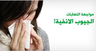 صورة علاج حساسية الجيوب الانفية بالاعشاب
